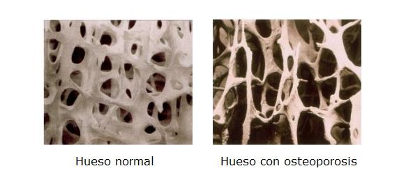 Hueso-con-osteoporosis-dona10